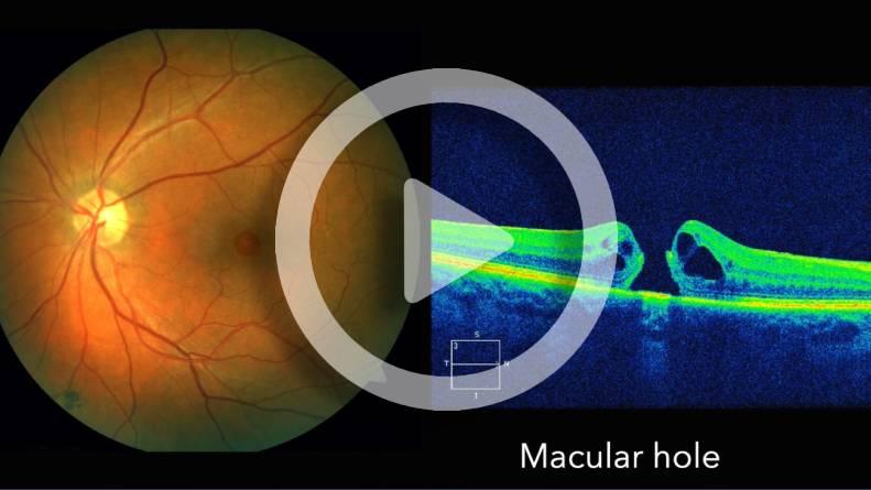 Macular Hole MH